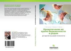 Bookcover of Кровотечения во время беременности и родов