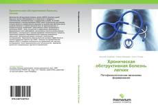 Обложка Хроническая обструктивная болезнь легких