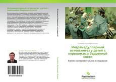 Buchcover von Интрамедуллярный остеосинтез у детей с переломами бедренной кости
