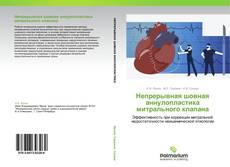 Buchcover von Непрерывная шовная аннулопластика митрального клапана