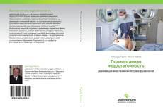 Bookcover of Полиорганная недостаточность