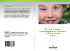Couverture de Острая травма временных и постоянных зубов у детей