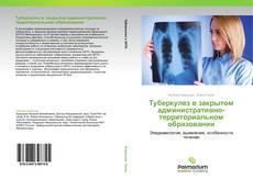 Couverture de Туберкулез в закрытом административно-территориальном образовании