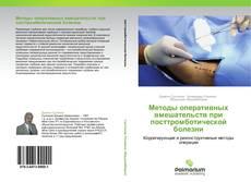 Bookcover of Методы оперативных вмешательств при посттромботической болезни