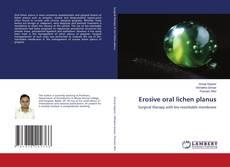 Bookcover of Erosive oral lichen planus