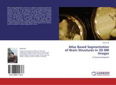 Bookcover of Atlas Based Segmentation of Brain Structures in 3D MR Images