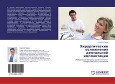 Bookcover of Хирургические осложнения дентальной имплантации