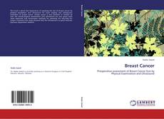Portada del libro de Breast Cancer