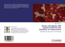 Bookcover of Study with Bactec 460 System & PCR for the detection of Tuberculosis
