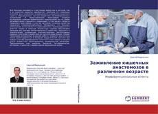 Buchcover von Заживление кишечных анастомозов в различном возрасте