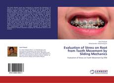 Copertina di Evaluation of Stress on Root from Tooth Movement by Sliding Mechanics