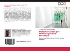 Bookcover of Morbimortalidad por Infarto Agudo del Miocardio