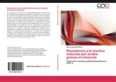 Couverture de Resistencia a la insulina inducida por ácidos grasos en músculo