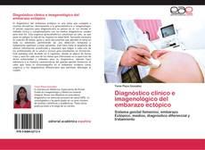 Diagnóstico clínico e imagenológico del embarazo ectópico的封面