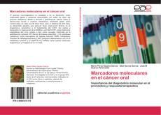 Bookcover of Marcadores moleculares en el cáncer oral