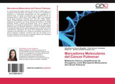 Bookcover of Marcadores Moleculares del Cáncer Pulmonar