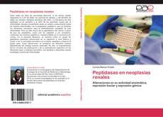 Bookcover of Peptidasas en neoplasias renales