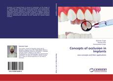 Capa do livro de Concepts of occlusion in Implants