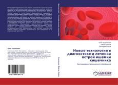 Bookcover of Новые технологии в диагностике и лечении  острой ишемии кишечника