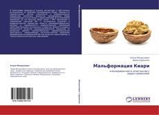 Bookcover of Мальформация Киари