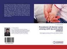 Bookcover of Prevalance of dental caries among cleft lip and palate children