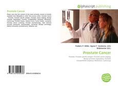 Borítókép a  Prostate Cancer - hoz