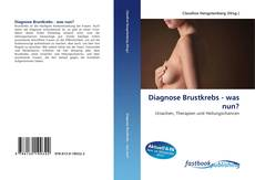 Bookcover of Diagnose Brustkrebs - was nun?