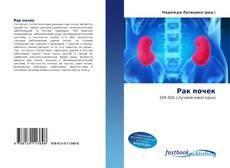 Bookcover of Рак почек