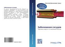 Bookcover of Заболевания сосудов