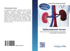Bookcover of Заболевания почек
