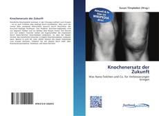 Обложка Knochenersatz der Zukunft