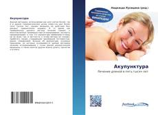 Bookcover of Акупунктура