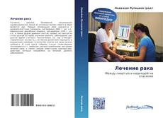 Bookcover of Лечение рака