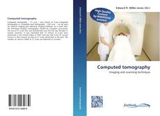 Bookcover of Computed tomography