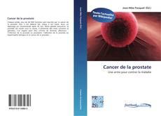 Borítókép a  Cancer de la prostate - hoz