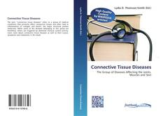 Bookcover of Connective Tissue Diseases