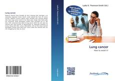 Couverture de Lung cancer