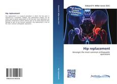 Bookcover of Hip replacement