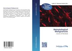 Bookcover of Hematological Malignancies