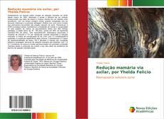 Обложка Redução mamária via axilar, por Yhelda Felicio