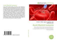 Bookcover of Acute Myeloid Leukemia