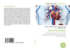 Bookcover of Atrial Fibrillation