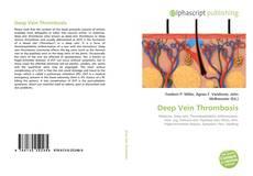 Couverture de Deep Vein Thrombosis