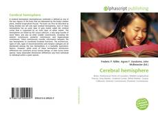 Bookcover of Cerebral hemisphere