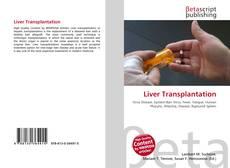 Bookcover of Liver Transplantation