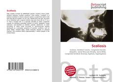 Buchcover von Scoliosis