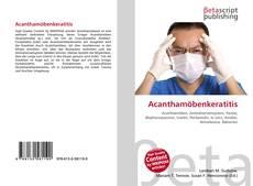 Capa do livro de Acanthamöbenkeratitis