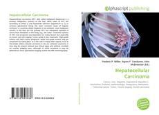 Portada del libro de Hepatocellular Carcinoma
