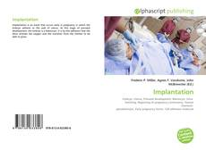 Bookcover of Implantation