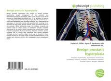 Borítókép a  Benign prostatic hyperplasia - hoz
